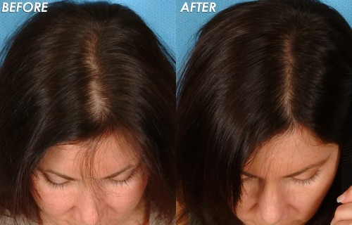 Laser Treatment For Hair Loss